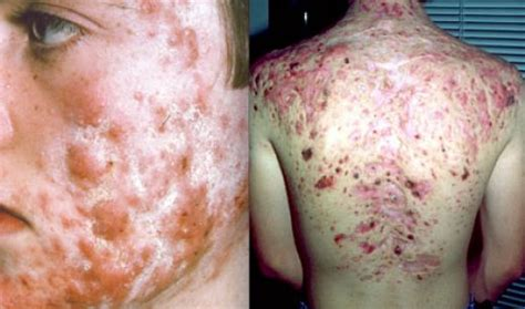 Medical Pictures Info – Cystic Acne