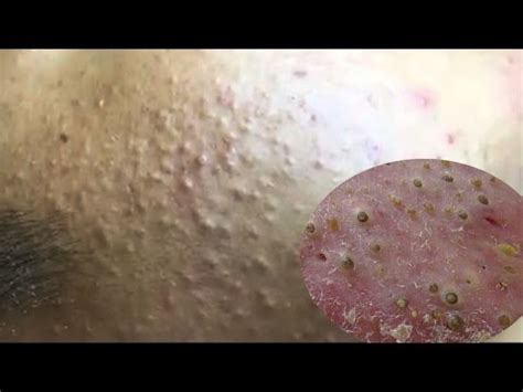 Cystic Acne, Pimples And Blackheads Extraction Treatment
