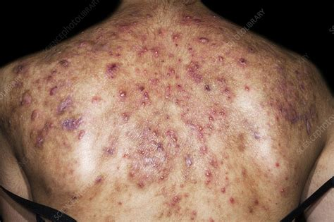 Cystic acne - Stock Image - C023/9331 - Science Photo Library