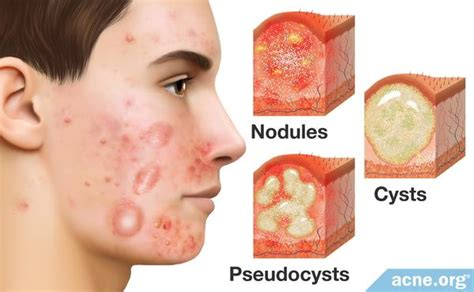 Acne Prone Skin : How To Treat Problematic Acne? | MONOSKIN